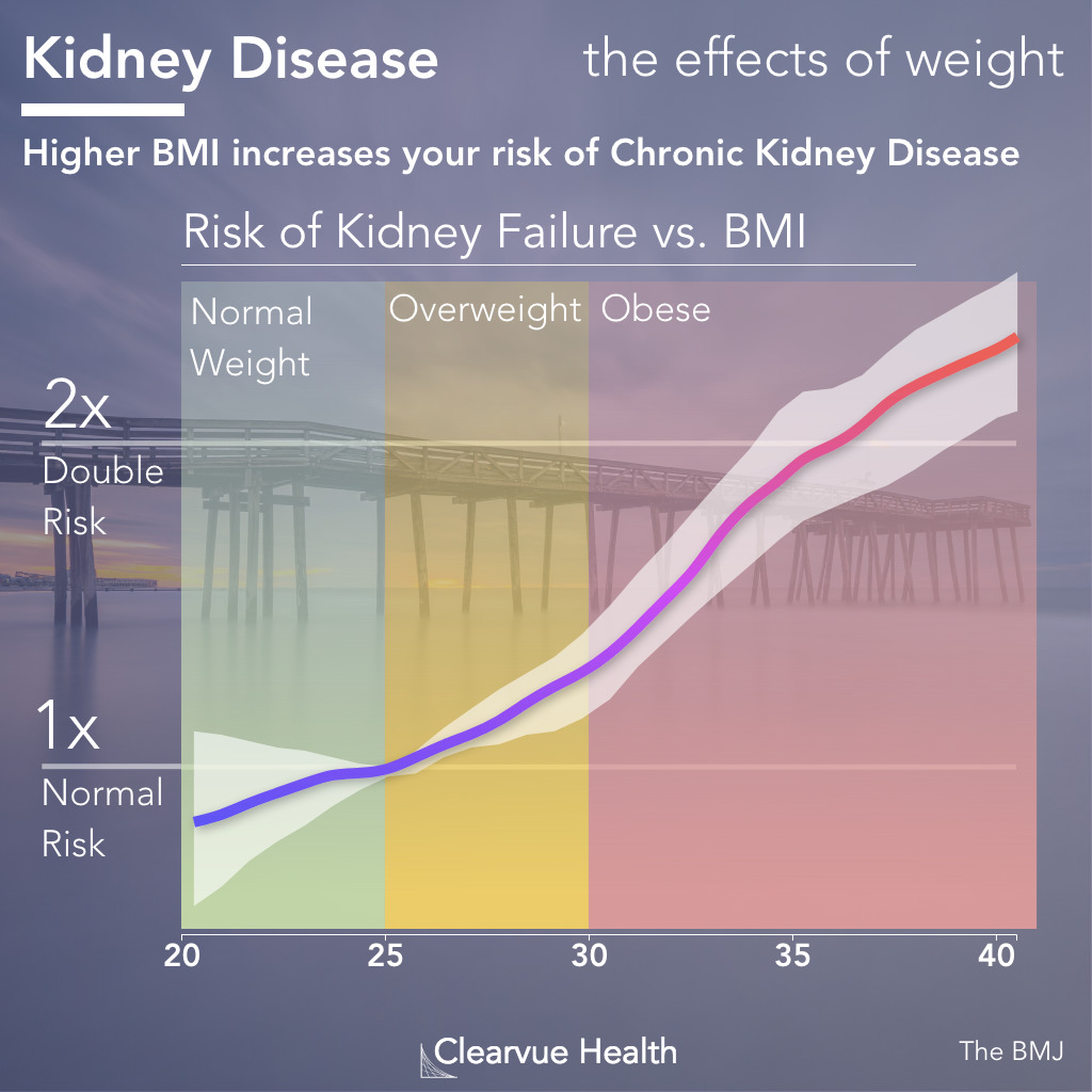 Visual Study: Body Weight (BMI) and Chronic Kidney Disease