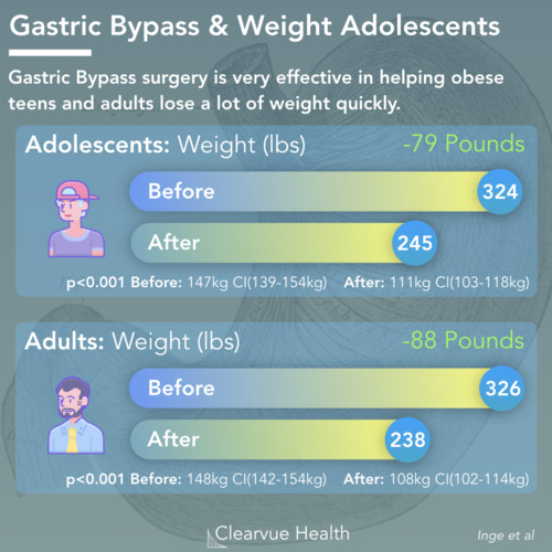 thumbnail for gastric-bypass-teens