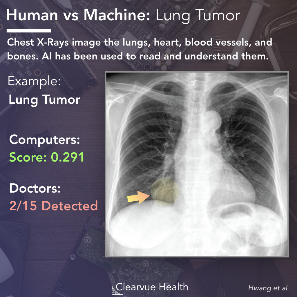 AI vs Doctor: Lung Tumor Recognition on a Chest X-ray