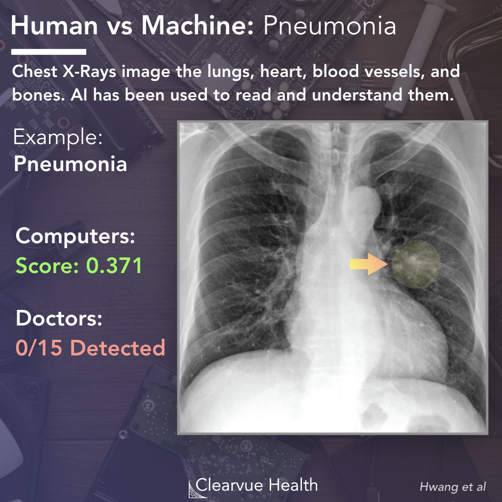 AI vs Doctor: Pneumonia Recognition on a Chest X-ray