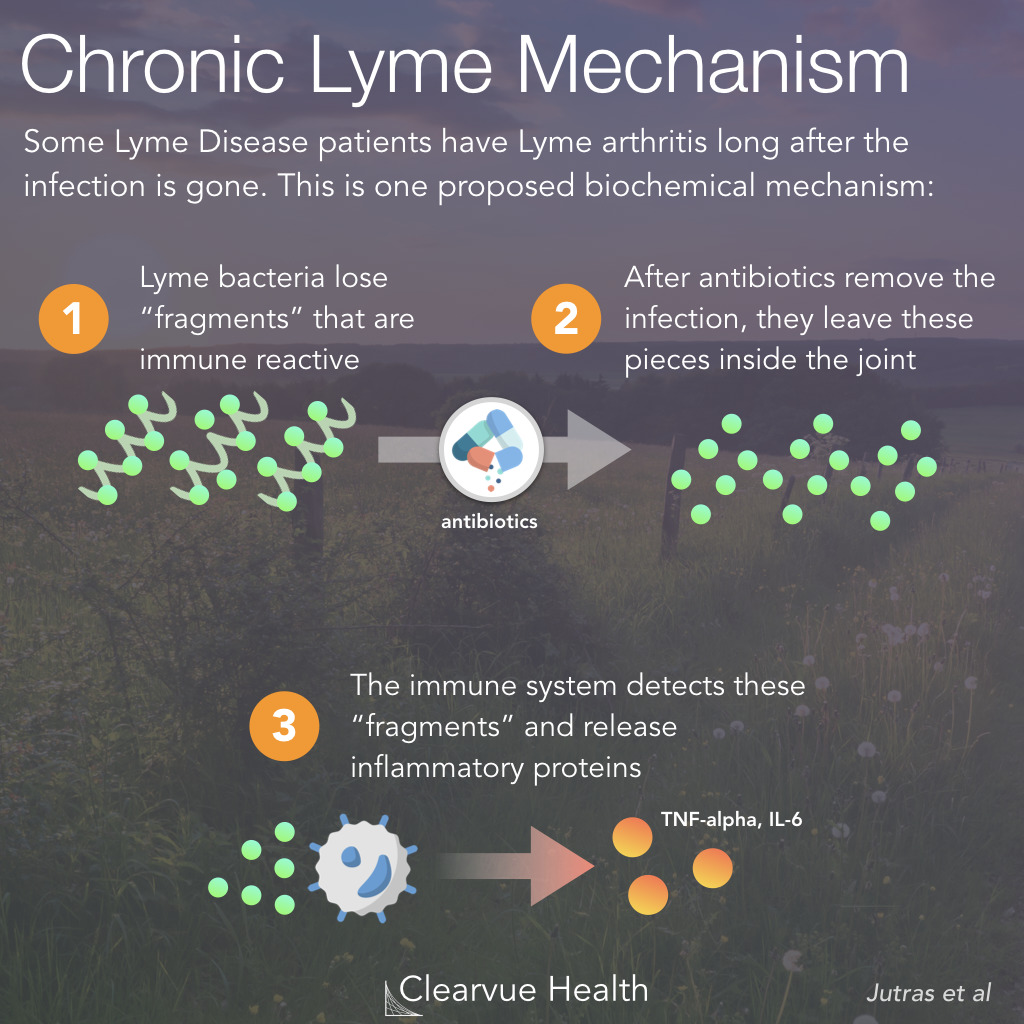 Chronic Lyme Disease Mechanism