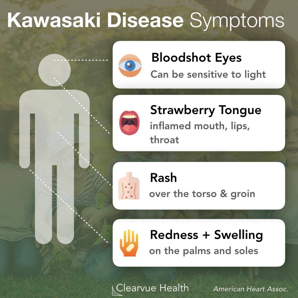 Kawasaki Disease Symptoms Chart