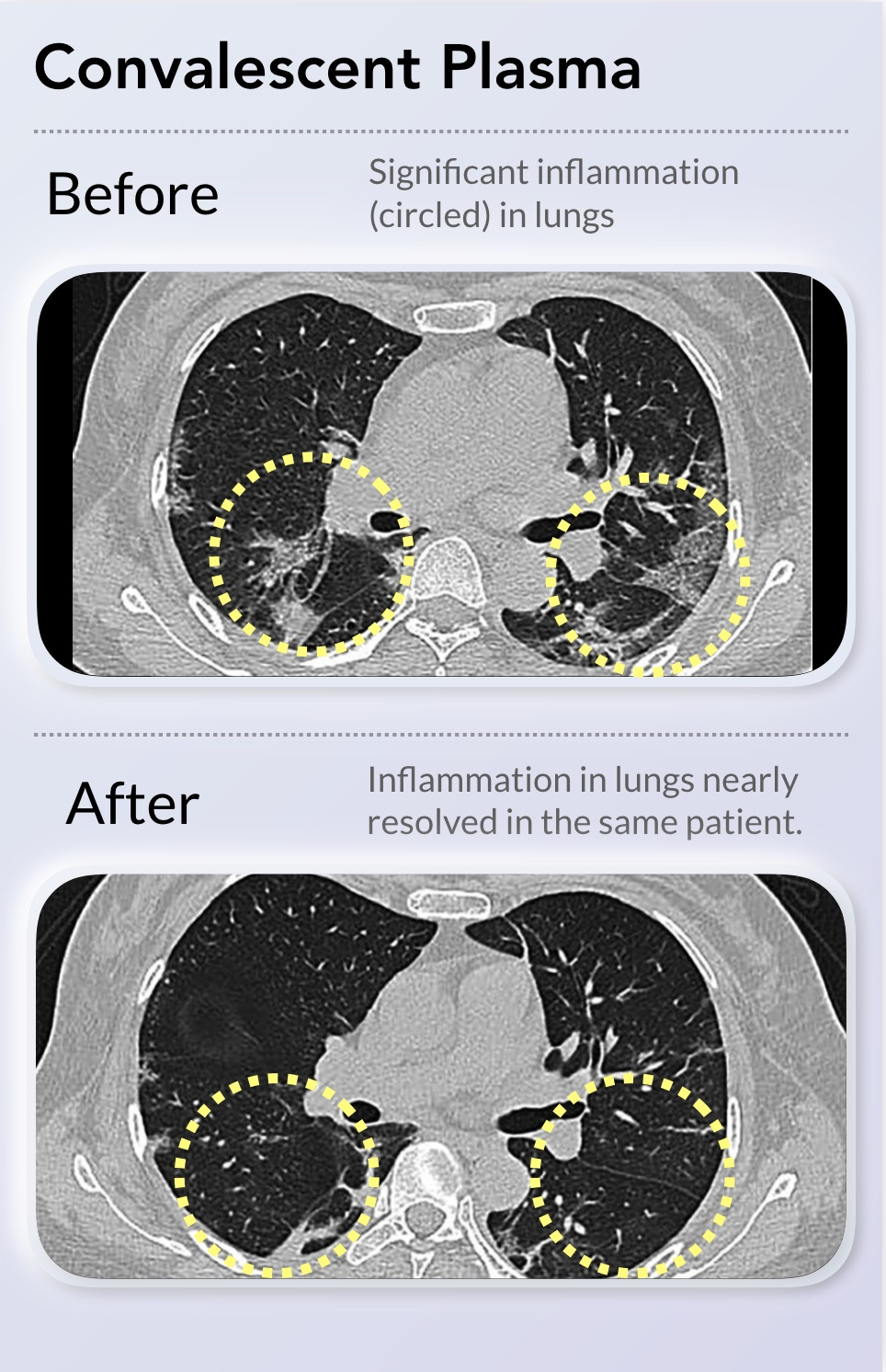 Effect of convalescent plasma on the lungs