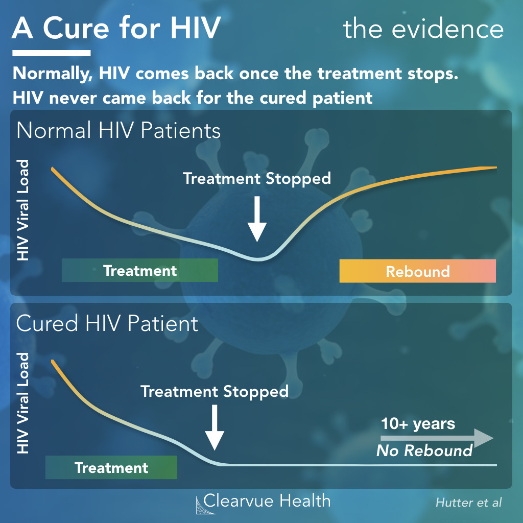 Effectiveness of Stem Cell Transplants in HIV