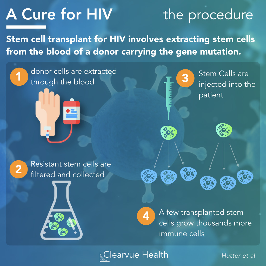How HIV Stem Cell Cures Work