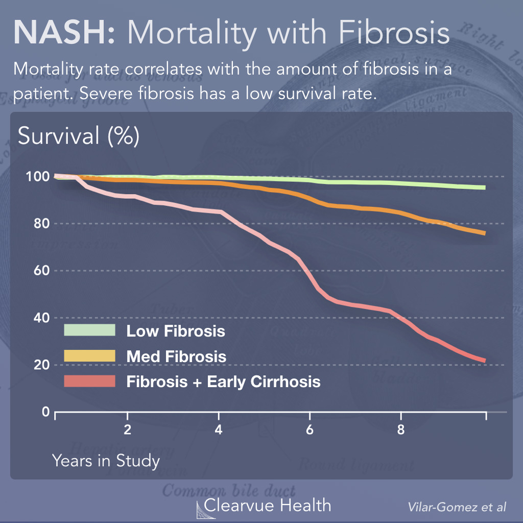 NASH survival with and without fibrisis