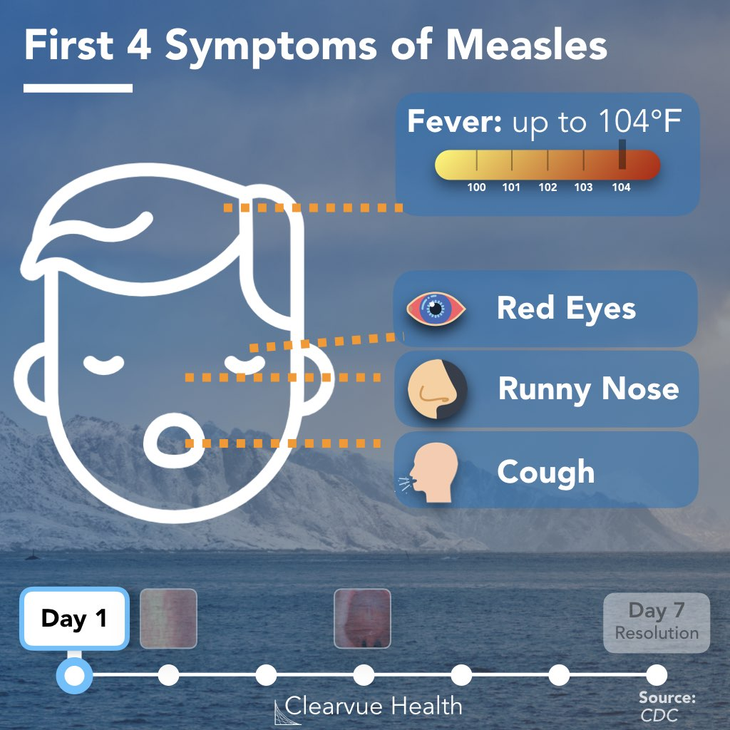 Early Symptoms of Measles